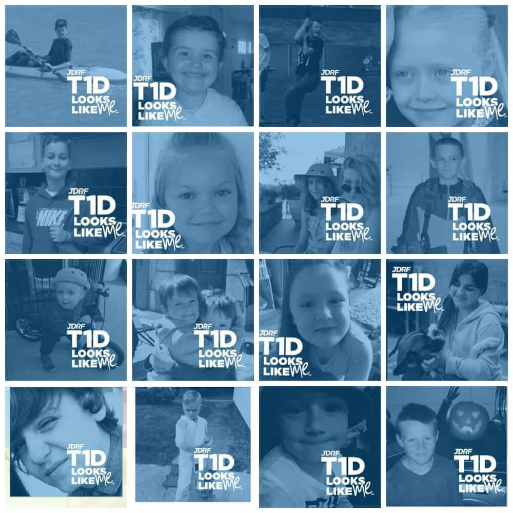 Type 1 Diabetes Faces